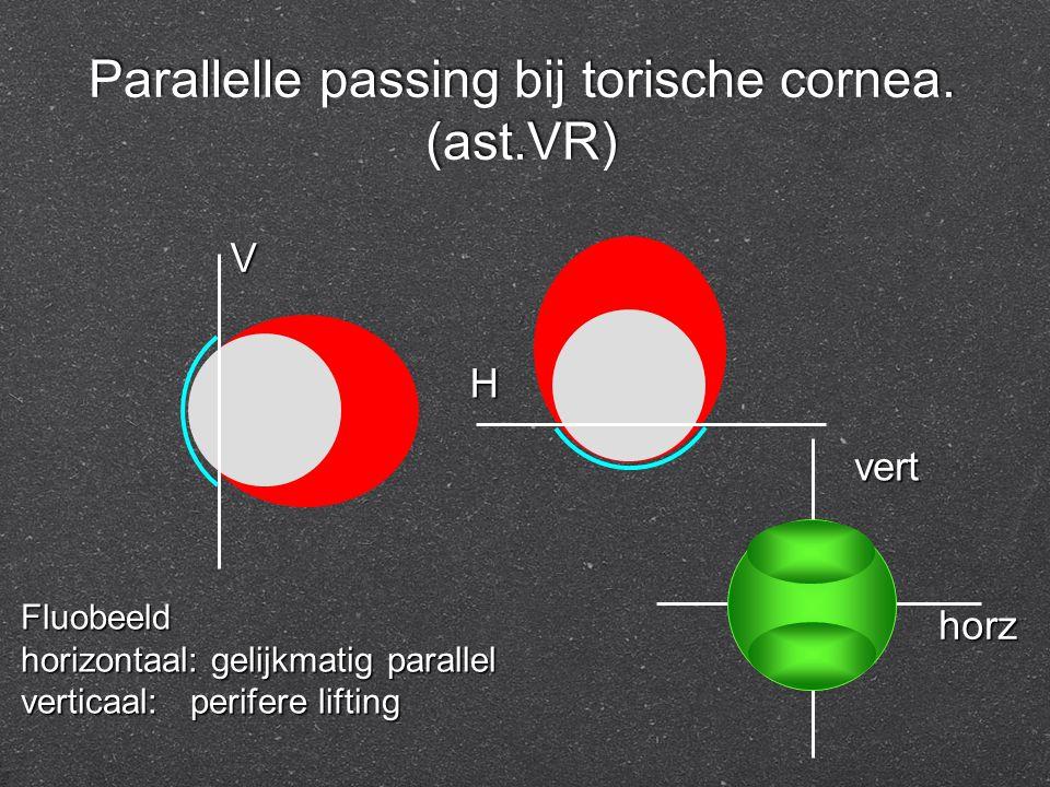 Parallelle passing bij torische cornea. (ast.VR) Fluobeeld horizontaal: gelijkmatig parallel verticaal: perifere lifting V H vert horz