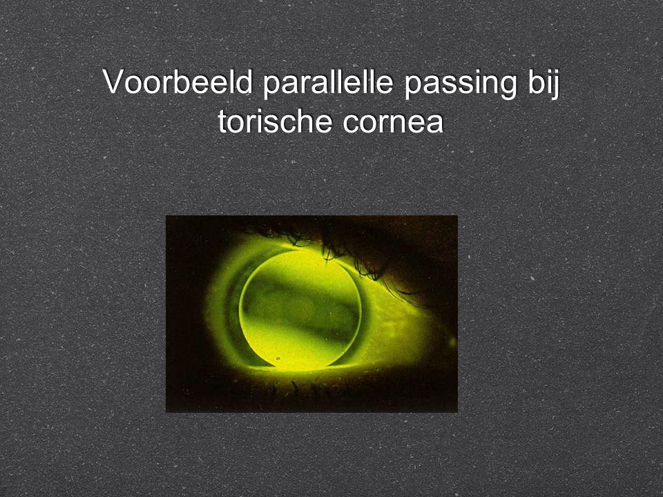 Voorbeeld parallelle passing bij torische cornea
