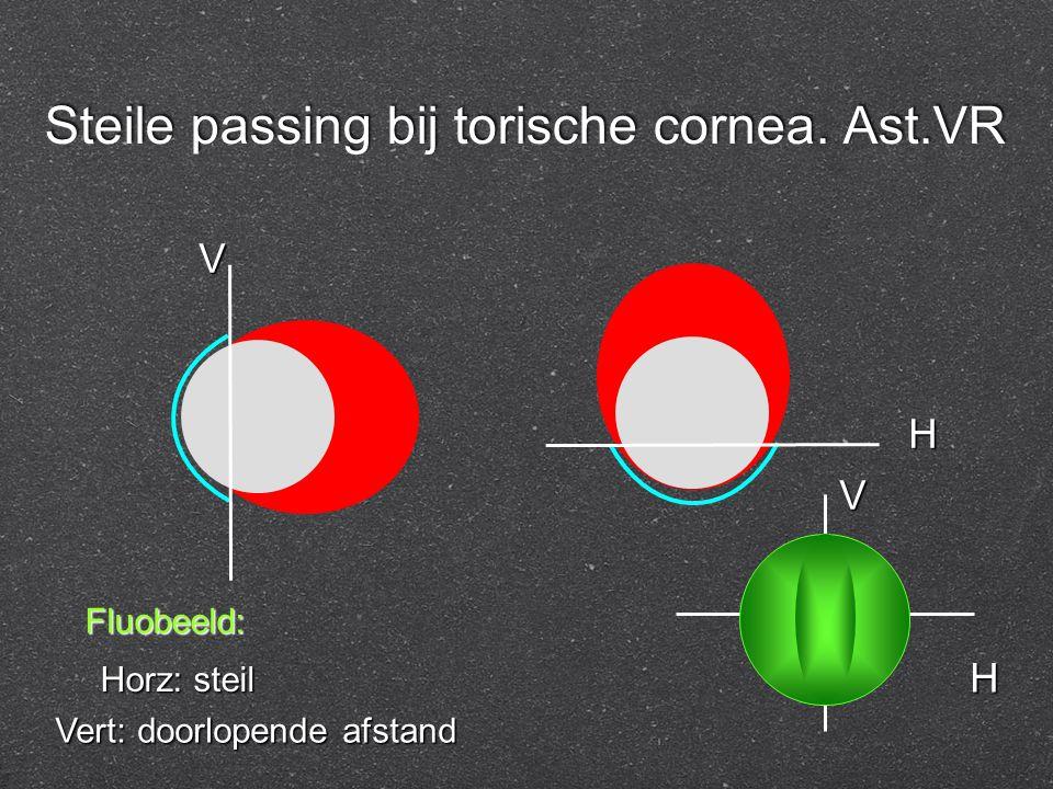Steile passing bij torische cornea. Ast.VR Fluobeeld: Horz: steil Vert: doorlopende afstand V H H V