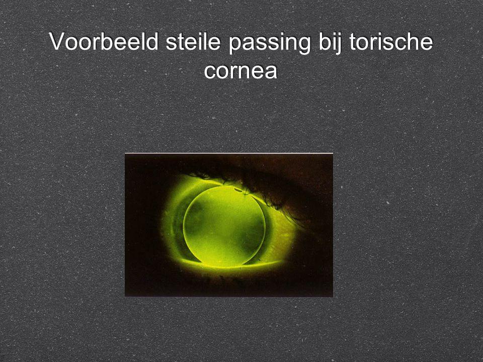 Voorbeeld steile passing bij torische cornea