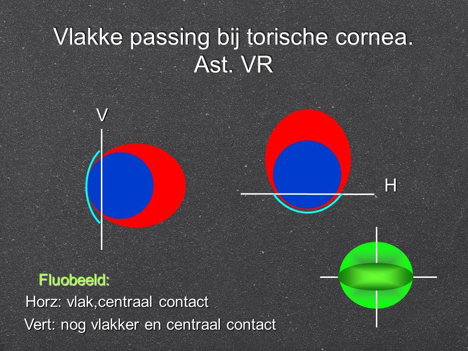 Vlakke passing bij torische cornea. Ast. VR Fluobeeld: Horz: vlak,centraal contact Vert: nog vlakker en centraal contact V H