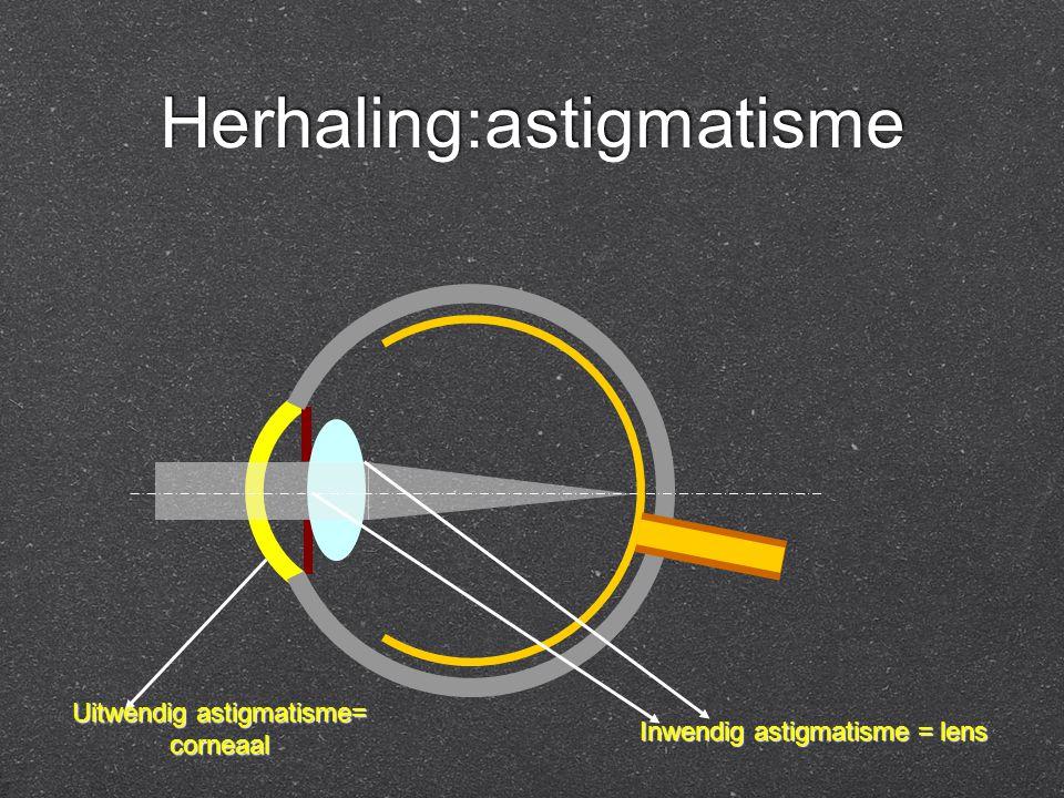 Herhaling:astigmatisme Uitwendig astigmatisme= corneaal Inwendig astigmatisme = lens