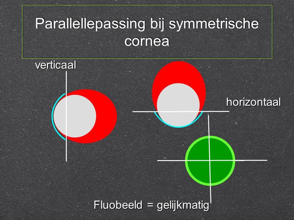 Parallellepassing bij symmetrische cornea verticaal horizontaal Fluobeeld = gelijkmatig