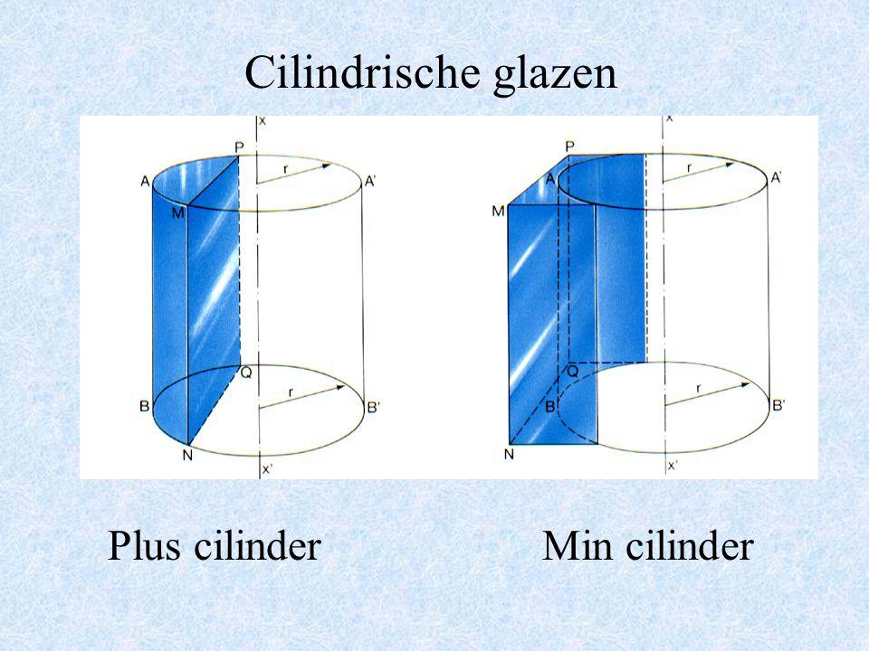 Lensvormen Plus lensMin lens