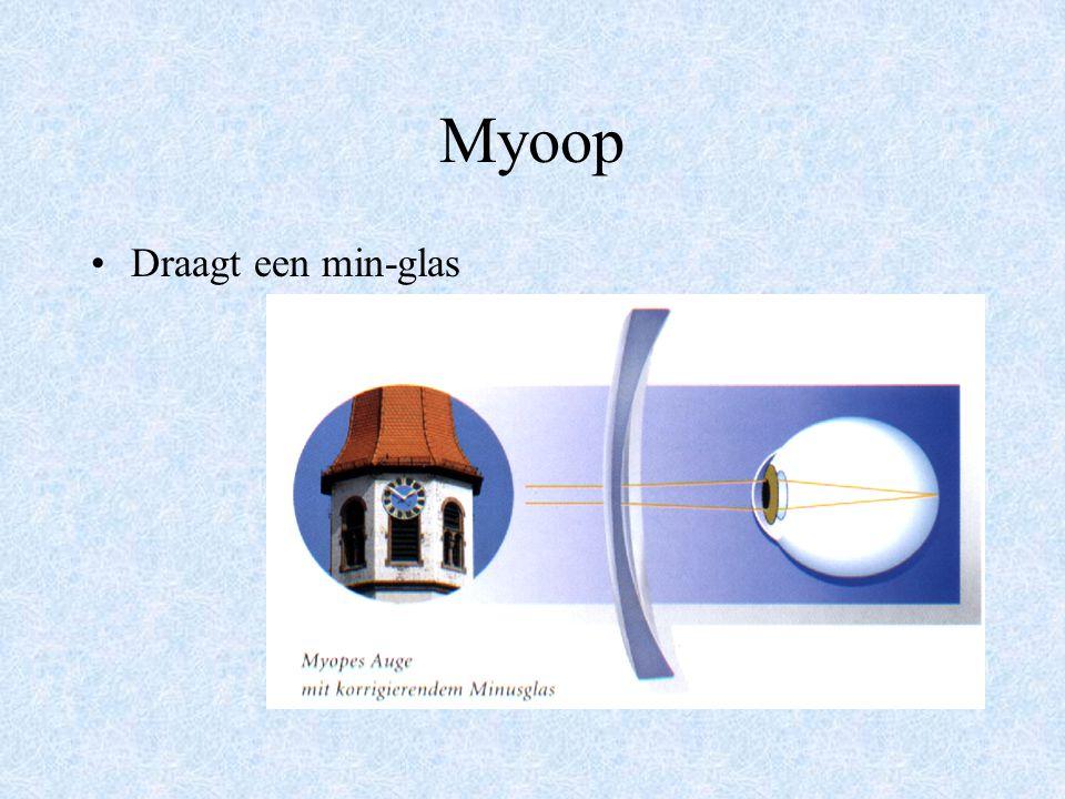 Myoop Oog is te lang in relatie tot het brekend vermogen