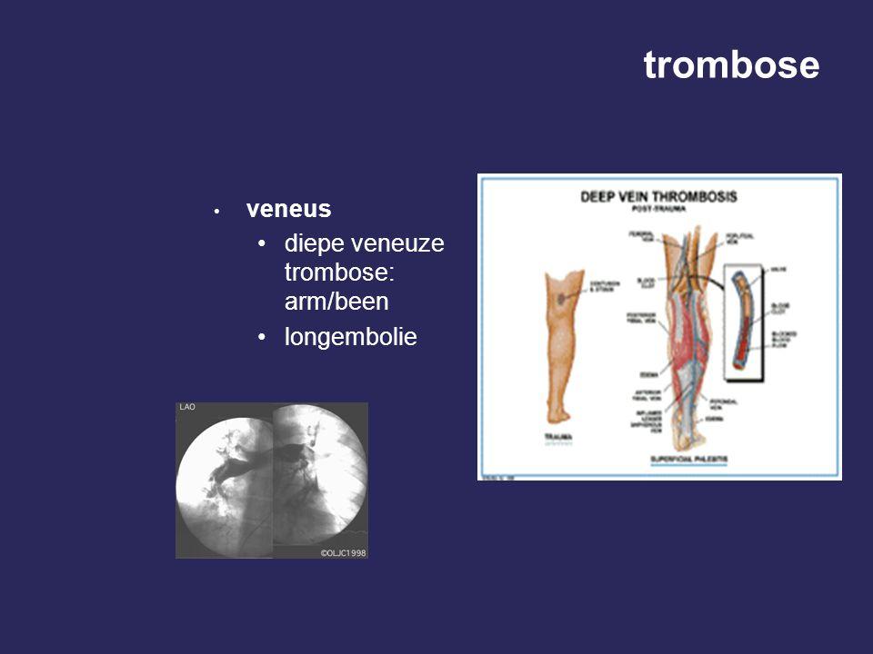 trombose veneus diepe veneuze trombose: arm/been longembolie