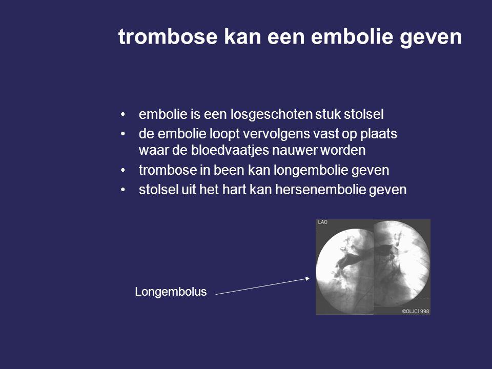 trombose kan een embolie geven embolie is een losgeschoten stuk stolsel de embolie loopt vervolgens vast op plaats waar de bloedvaatjes nauwer worden