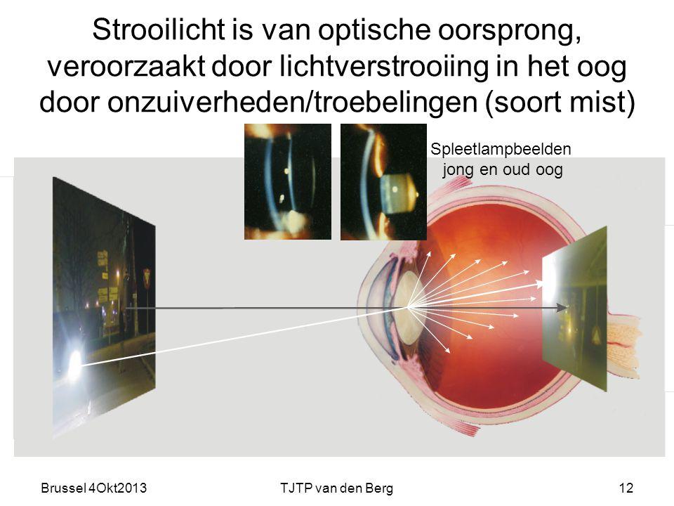 Brussel 4Okt2013TJTP van den Berg12 Strooilicht is van optische oorsprong, veroorzaakt door lichtverstrooiing in het oog door onzuiverheden/troebelingen (soort mist) Spleetlampbeelden jong en oud oog