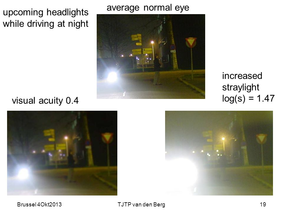 Brussel 4Okt2013TJTP van den Berg19 visual acuity 0.4 increased straylight log(s) = 1.47 upcoming headlights while driving at night average normal eye