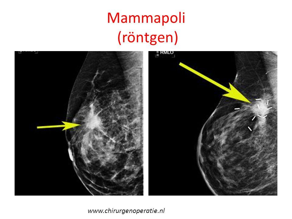 Mammapoli (röntgen) www.chirurgenoperatie.nl