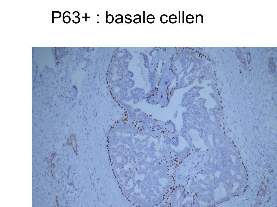 P63+ : basale cellen