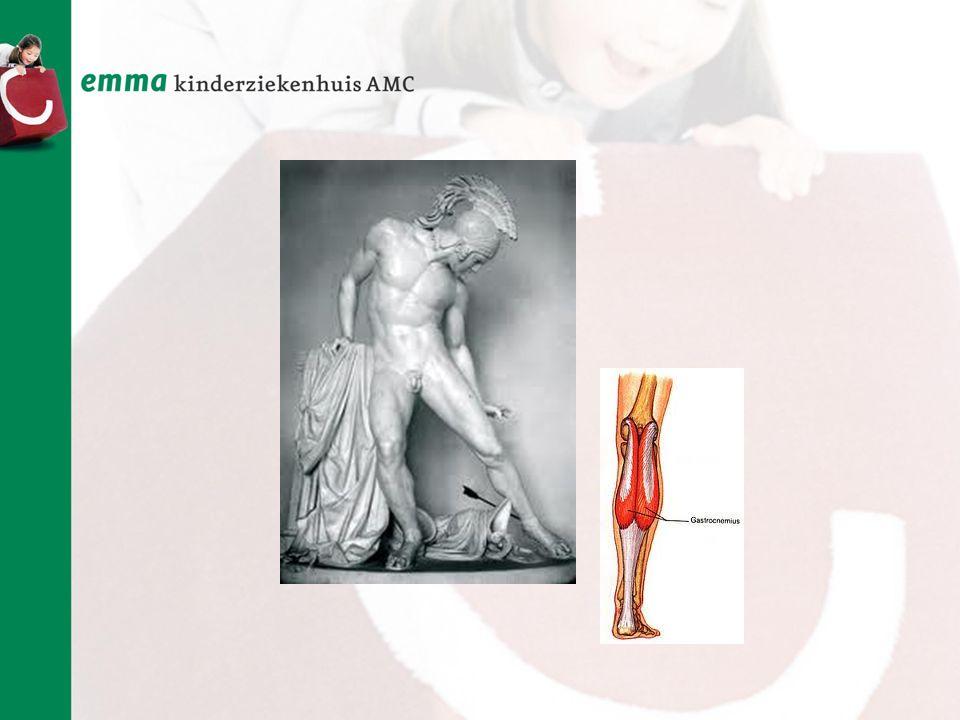 Factoren van invloed op de loopfunctie bij kinderen met Spina Bifida L3-L5 Sacraal (M.Verhoef 2004)