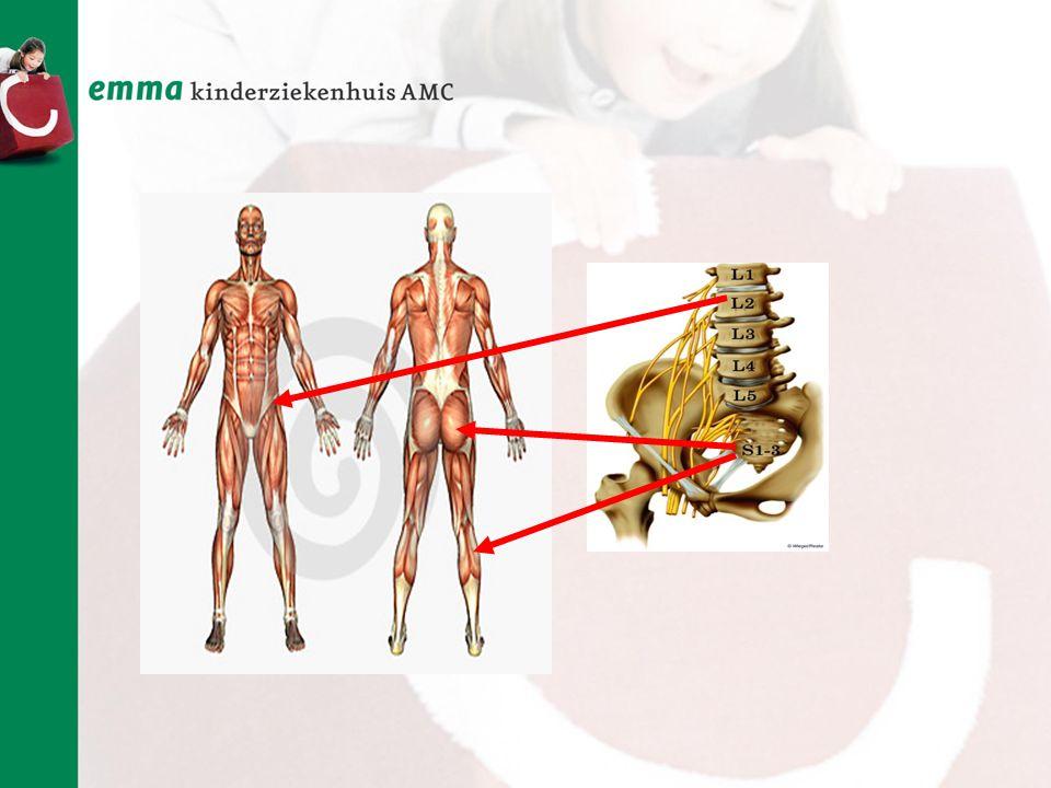 Ruggenmergbeschadiging Spierzwakte Orthopedische problemen