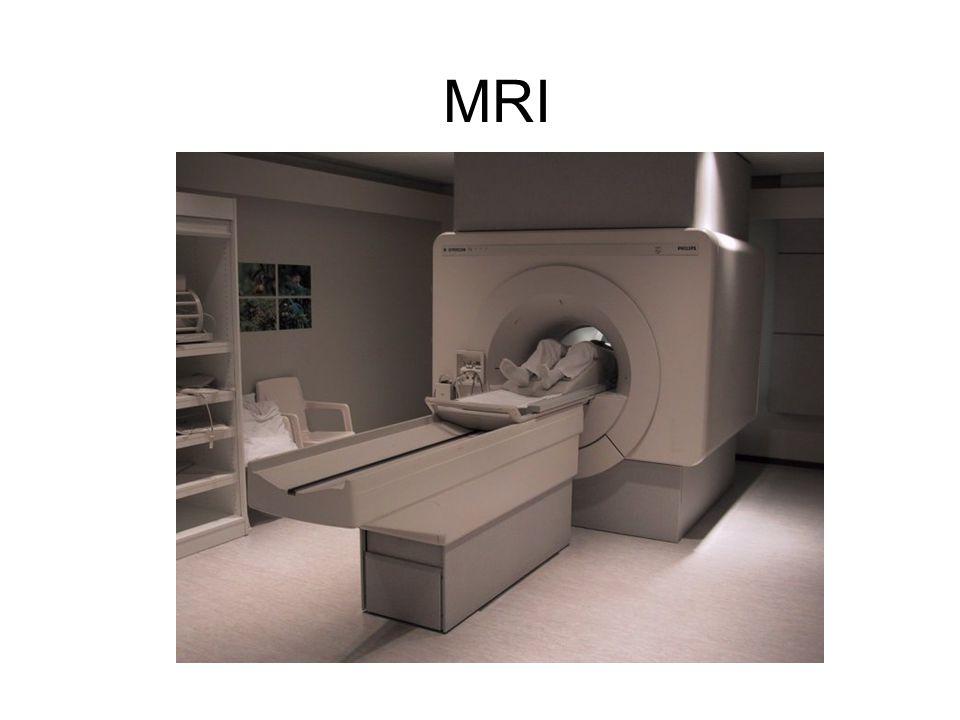 MRI-scan: foto van het brein op basis van magnetische resonantie Hersenbloeding: