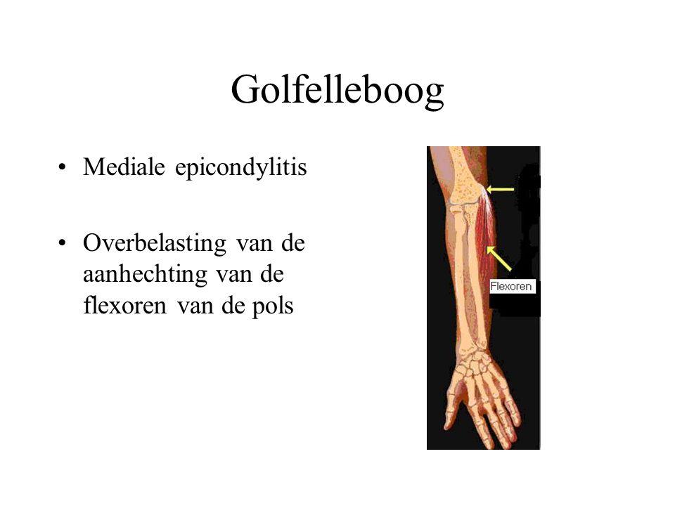 Golfelleboog Mediale epicondylitis Overbelasting van de aanhechting van de flexoren van de pols