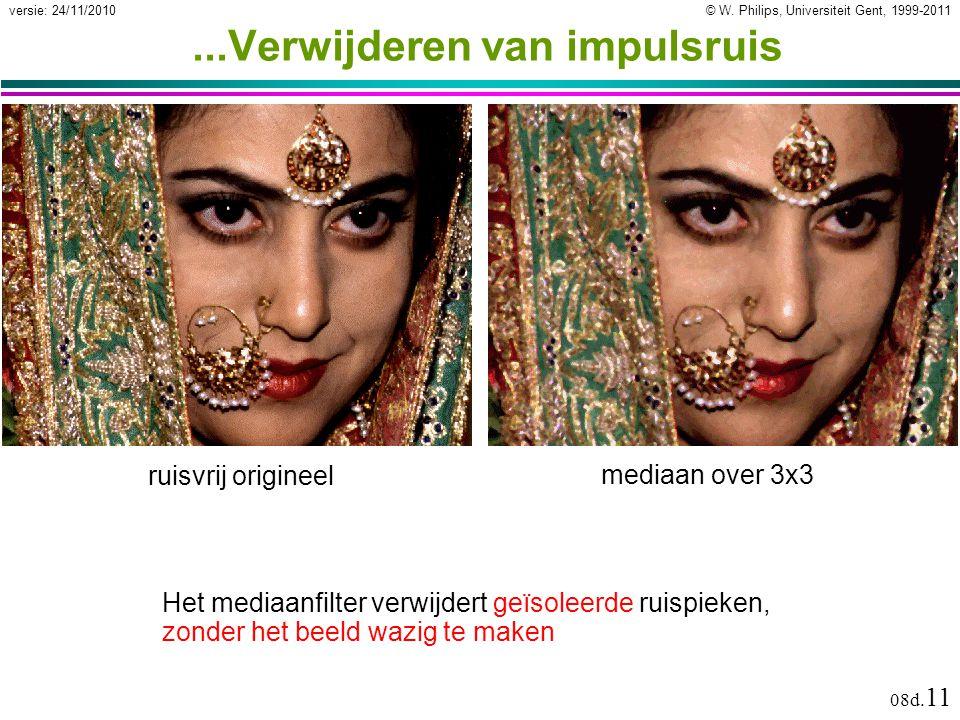 © W. Philips, Universiteit Gent, 1999-2011versie: 24/11/2010 08d. 11...Verwijderen van impulsruis mediaan over 3x3 Het mediaanfilter verwijdert geïsol
