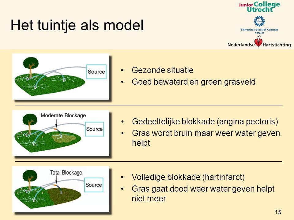 Het tuintje als model Gezonde situatie Goed bewaterd en groen grasveld Gedeeltelijke blokkade (angina pectoris) Gras wordt bruin maar weer water geven