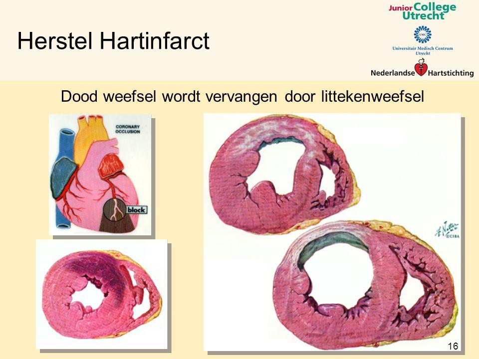 Herstel Hartinfarct Dood weefsel wordt vervangen door littekenweefsel 16