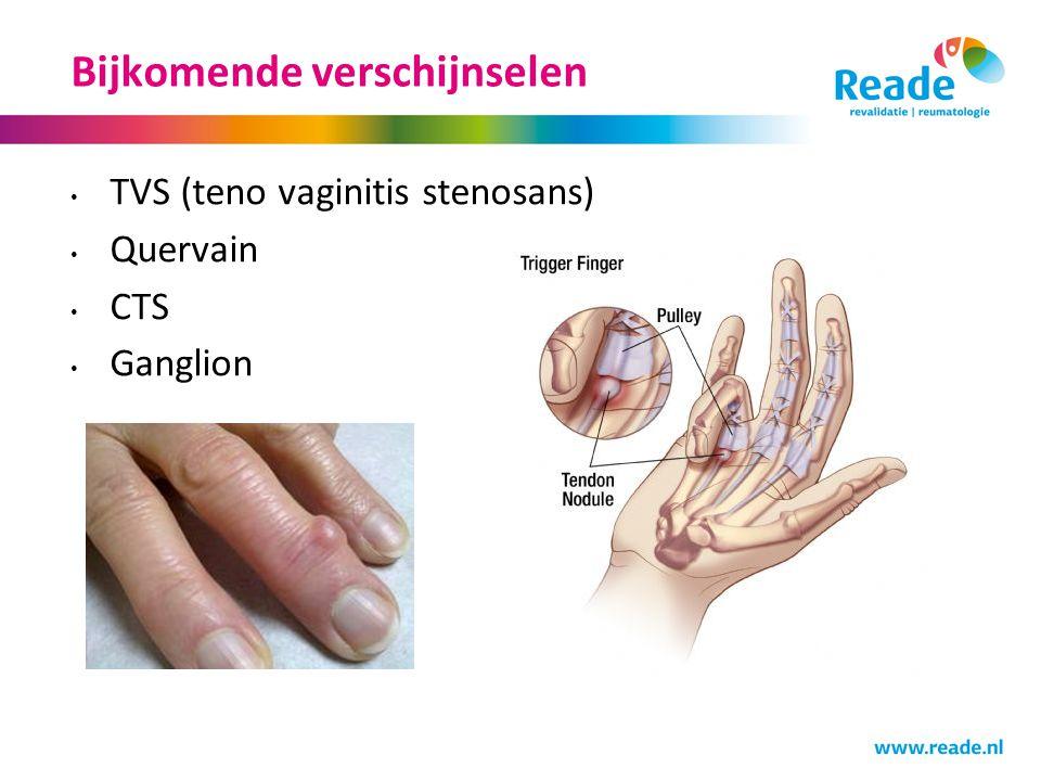 Bijkomende verschijnselen TVS (teno vaginitis stenosans) Quervain CTS Ganglion
