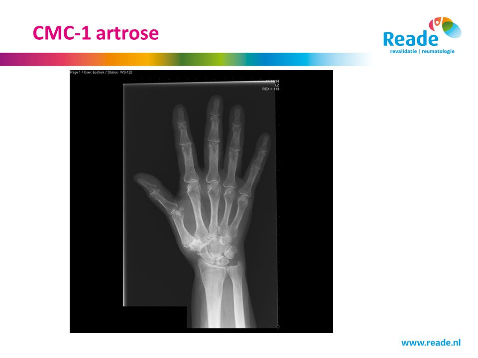 CMC-1 artrose