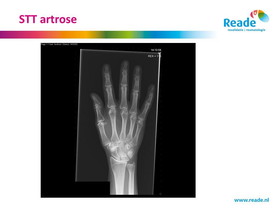 STT artrose