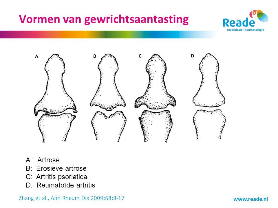Vormen van gewrichtsaantasting A : Artrose B: Erosieve artrose C: Artritis psoriatica D: Reumatoïde artritis Zhang et al., Ann Rheum Dis 2009;68;8-17