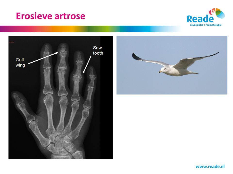 Erosieve artrose