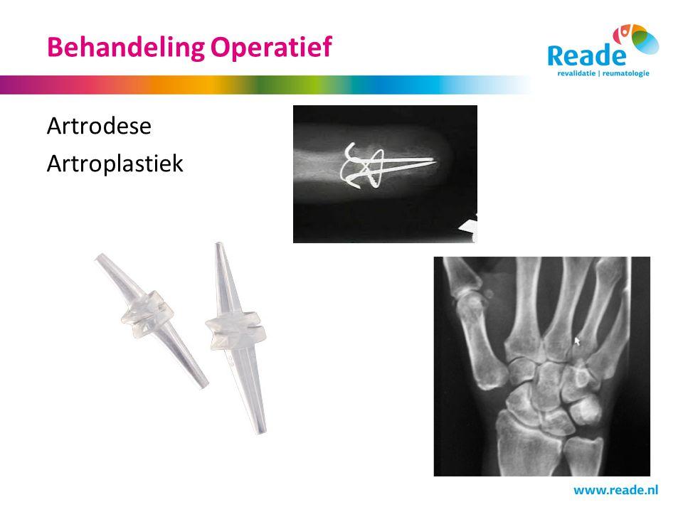 Behandeling Operatief Artrodese Artroplastiek