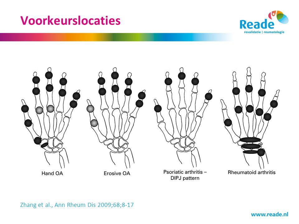Prevalentie Prevalentie in bevolking ≥ 55 jaar (gemiddelde leeftijd 66,6 jaar) Rotterdam studie (n=3906) 67% van de vrouwen atrose in 1 handgewricht 54,8% van de mannen artrose in 1 handgewricht DIP: 47,3% Duimbasis: 35,8% (CMC1 of STT) PIP: 18,2% MCP: 8,2% 15% handpijn (alleen relatie met CMC1 artrose) Dahaghin et al., Ann Rheum Dis 2005;64:682-687