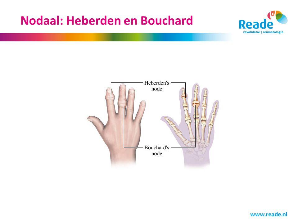 Nodaal: Heberden en Bouchard