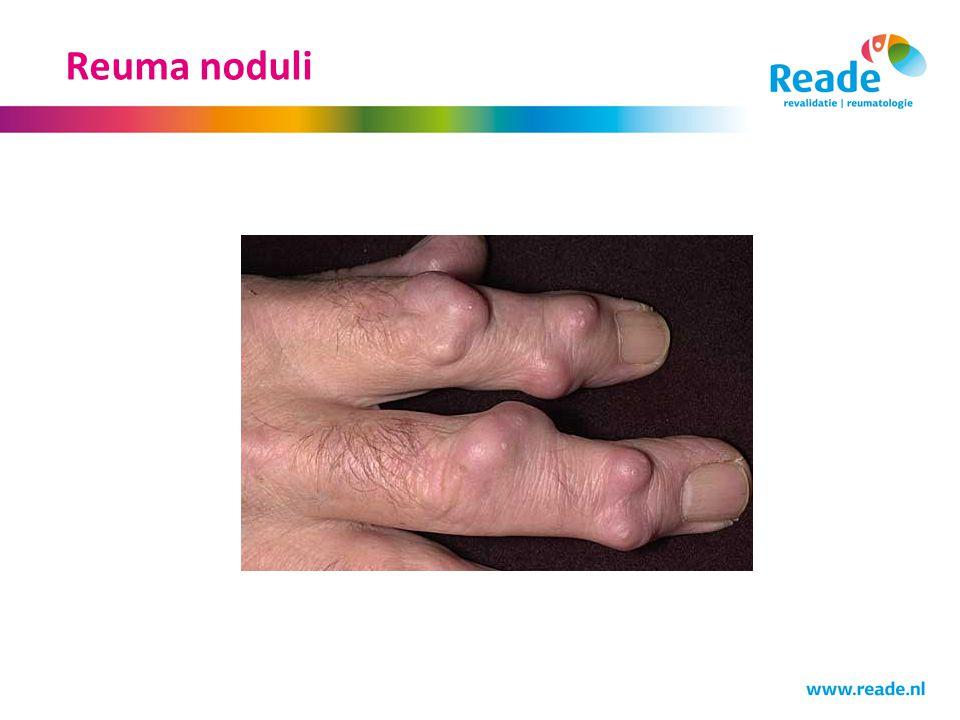 Reuma noduli
