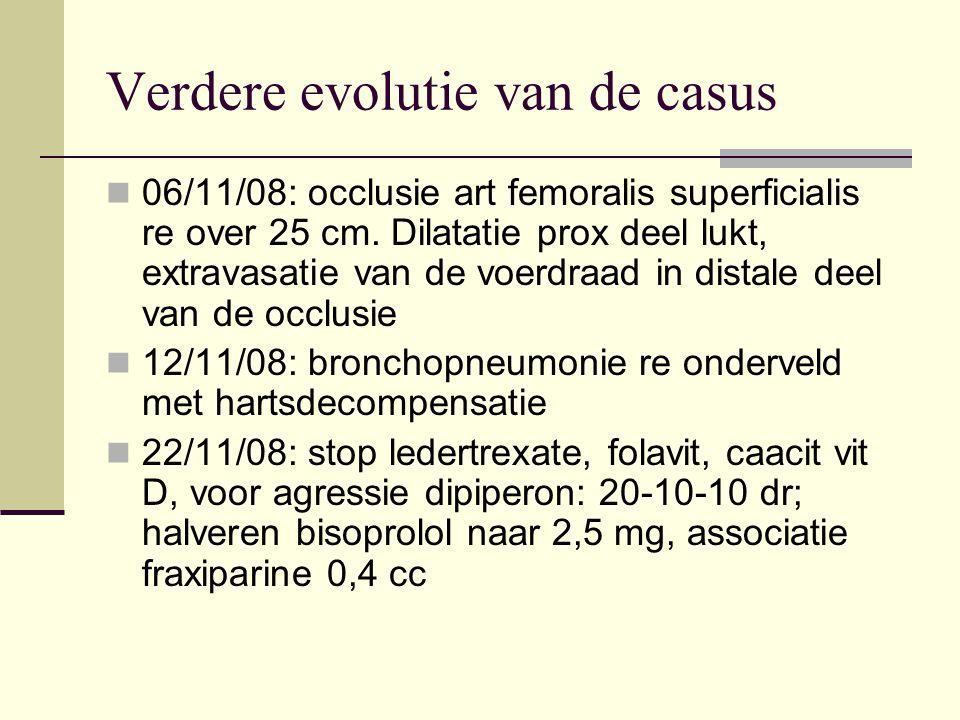 Verdere evolutie van de casus 06/11/08: occlusie art femoralis superficialis re over 25 cm. Dilatatie prox deel lukt, extravasatie van de voerdraad in