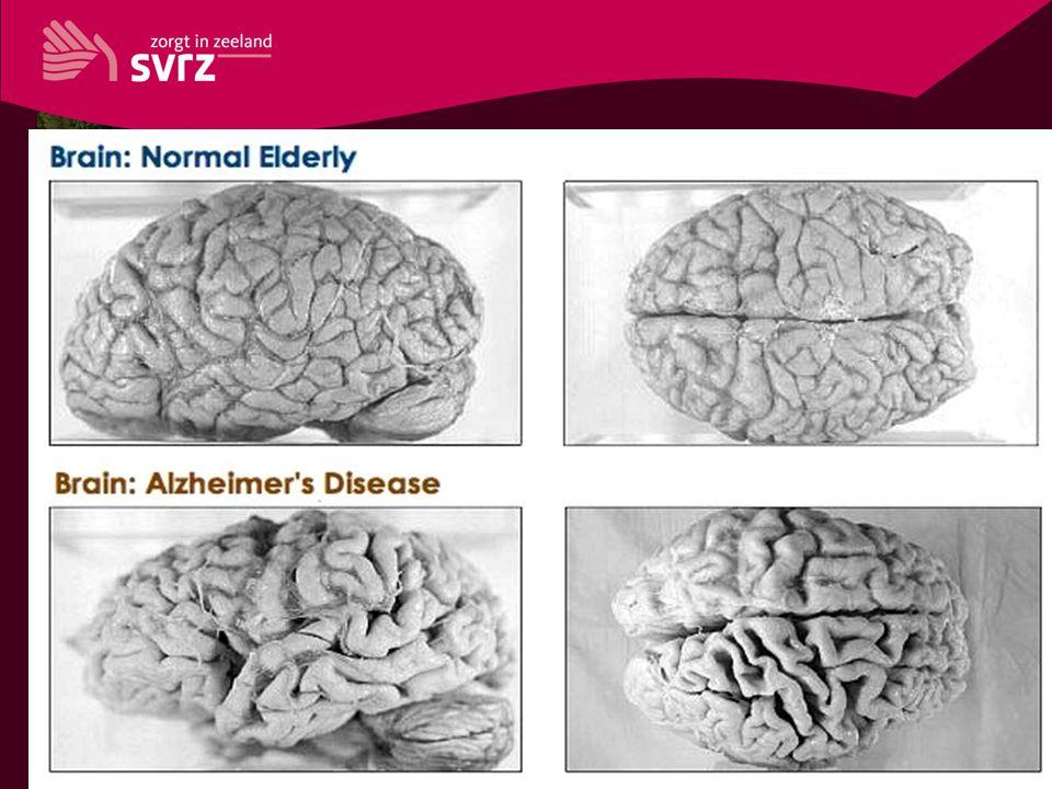 Ziekte van Alzheimer opsomming 1 opsomming 2 opsomming 3 opsomming 4 enz.