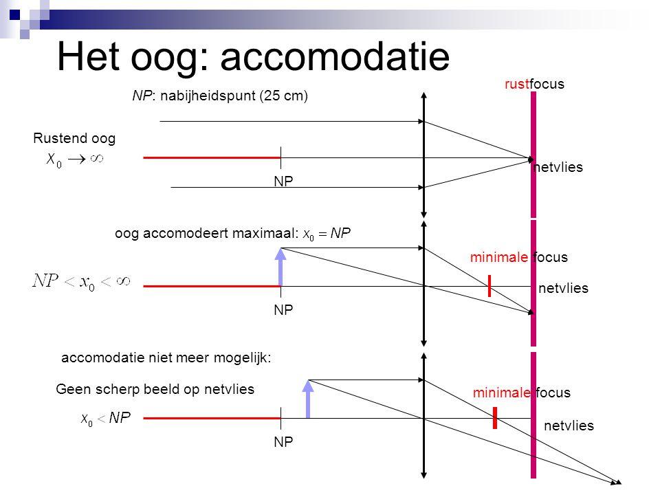 Het oog: accomodatie NP: nabijheidspunt (25 cm) netvlies NP Rustend oog NP accomodatie niet meer mogelijk: NP oog accomodeert maximaal: netvlies minim