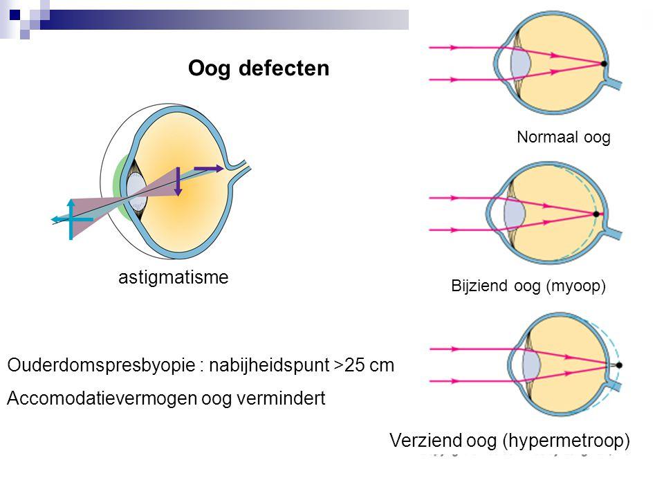 Oog defecten Normaal oog Bijziend oog (myoop) Verziend oog (hypermetroop) astigmatisme Ouderdomspresbyopie : nabijheidspunt >25 cm Accomodatievermogen