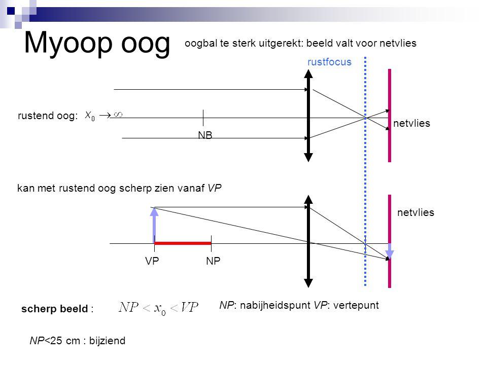 Myoop oog NP: nabijheidspunt VP: vertepunt netvlies NB rustend oog: netvlies NP kan met rustend oog scherp zien vanaf VP rustfocus scherp beeld : oogb