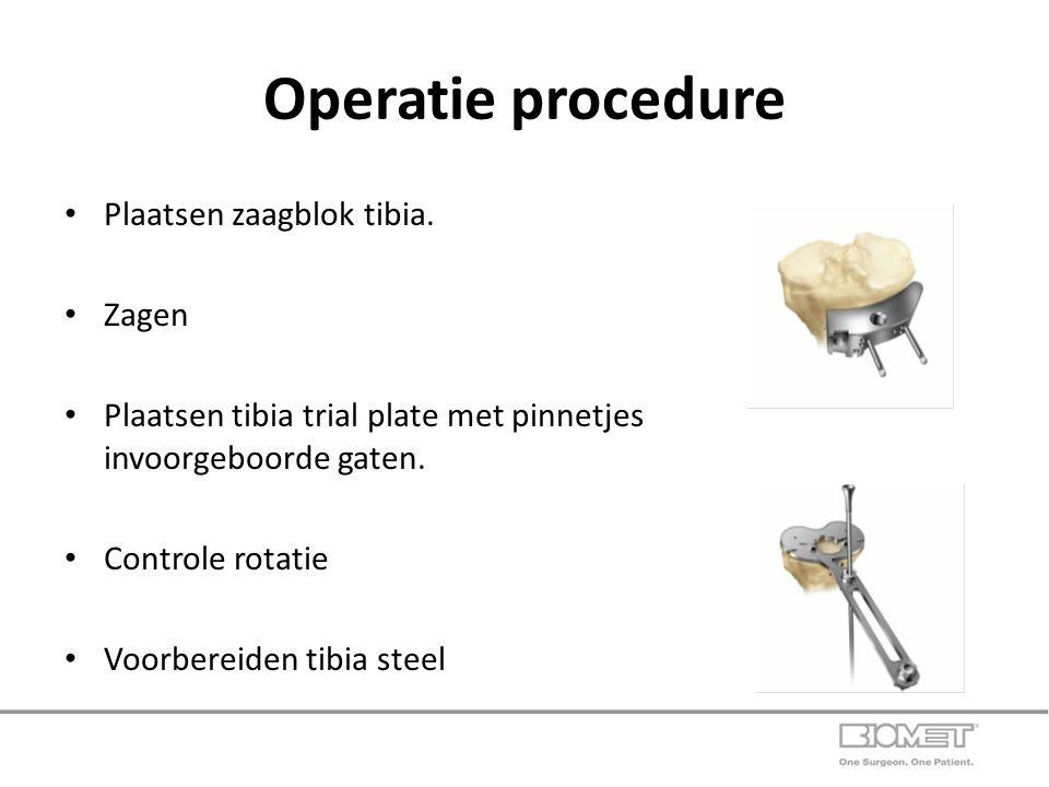 Operatie procedure Plaatsen zaagblok tibia. Zagen Plaatsen tibia trial plate met pinnetjes invoorgeboorde gaten. Controle rotatie Voorbereiden tibia s