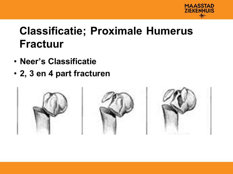 Classificatie; Proximale Humerus Fractuur Neer's Classificatie 2, 3 en 4 part fracturen