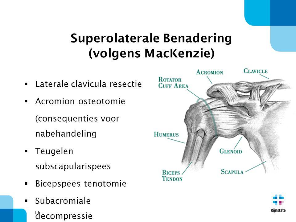 11 Superolaterale Benadering (volgens MacKenzie)  Laterale clavicula resectie  Acromion osteotomie (consequenties voor nabehandeling  Teugelen subs