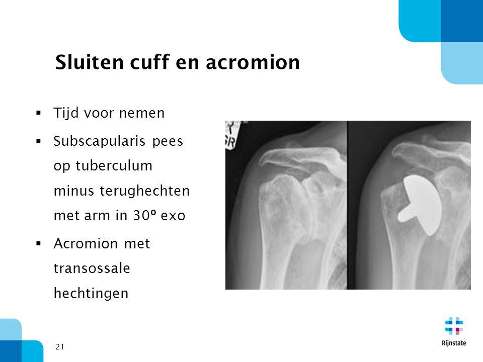 21 Sluiten cuff en acromion  Tijd voor nemen  Subscapularis pees op tuberculum minus terughechten met arm in 30º exo  Acromion met transossale hech