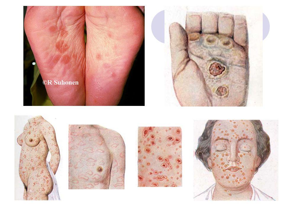 Derde stadium Na latente periode (soms 30 jaar) Gomachtige gezwellen: gummata Meestal in de huid en beenderen Soms wordt bloedvatenstelsel en zenuwstelsel aangetast  soms met verlamming, krankzinnigheid en dood tot gevolg