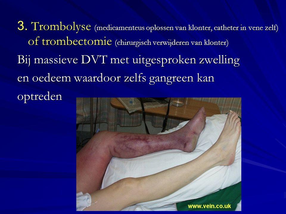 3. Trombolyse (medicamenteus oplossen van klonter, catheter in vene zelf) of trombectomie (chirurgisch verwijderen van klonter) Bij massieve DVT met u