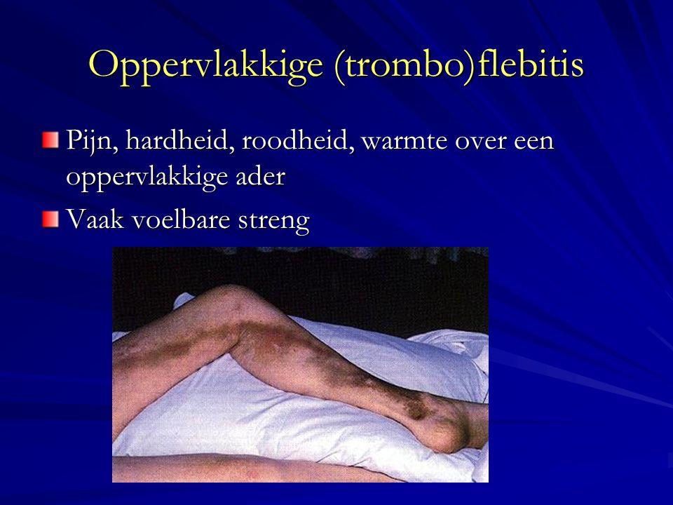 Oppervlakkige (trombo)flebitis Pijn, hardheid, roodheid, warmte over een oppervlakkige ader Vaak voelbare streng