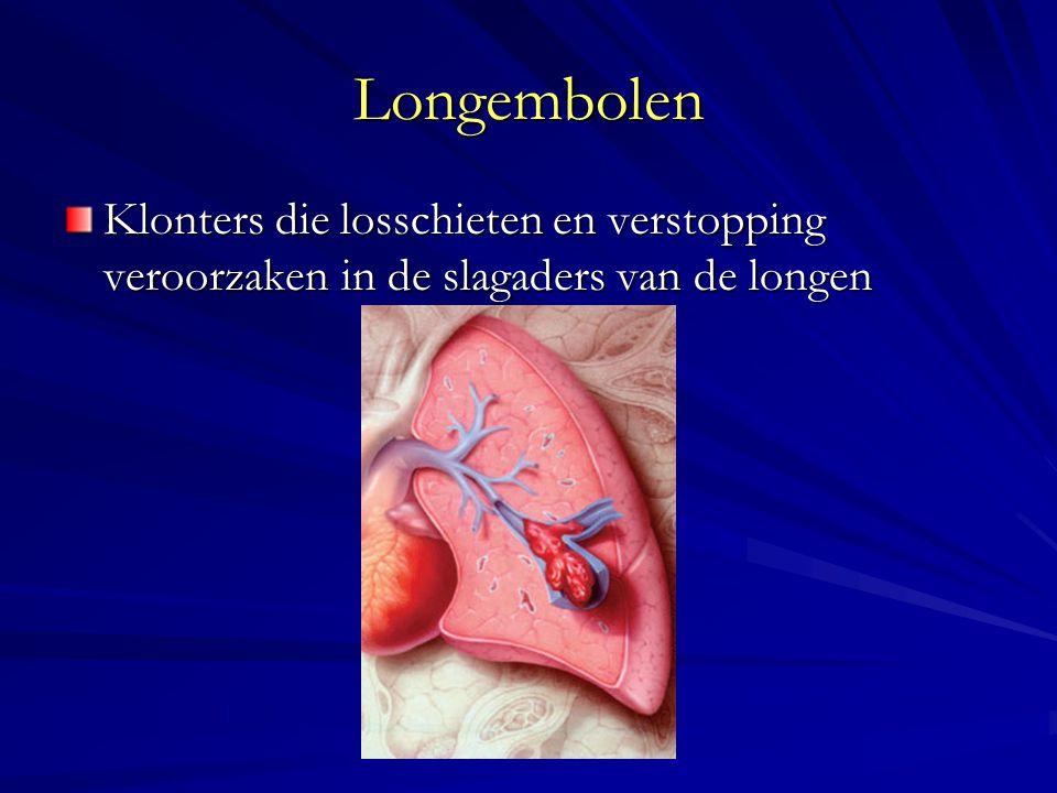Longembolen Klonters die losschieten en verstopping veroorzaken in de slagaders van de longen