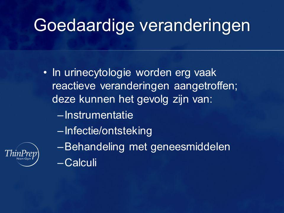 Goedaardige veranderingenGoedaardige veranderingen In urinecytologie worden erg vaak reactieve veranderingen aangetroffen; deze kunnen het gevolg zijn van: –Instrumentatie –Infectie/ontsteking –Behandeling met geneesmiddelen –Calculi