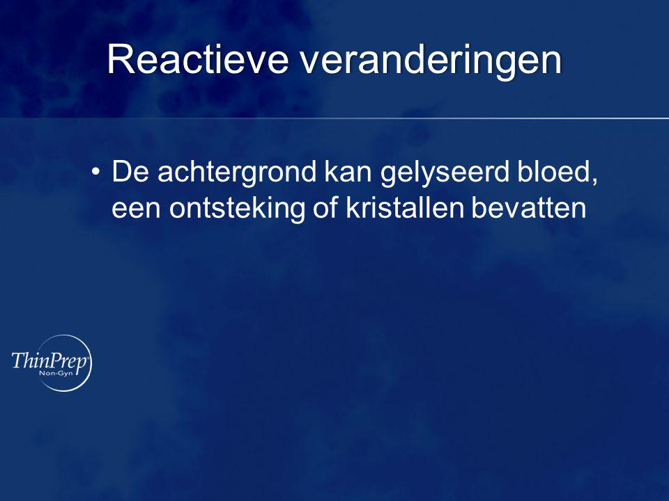 Reactieve veranderingenReactieve veranderingen De achtergrond kan gelyseerd bloed, een ontsteking of kristallen bevatten