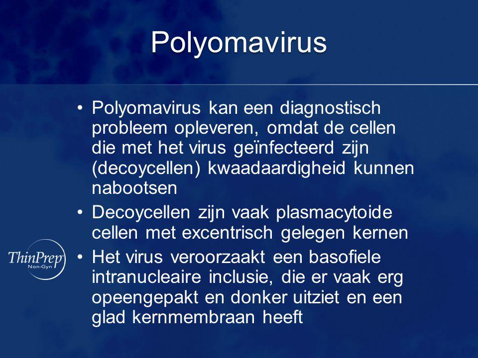 Polyomavirus Polyomavirus kan een diagnostisch probleem opleveren, omdat de cellen die met het virus geïnfecteerd zijn (decoycellen) kwaadaardigheid kunnen nabootsen Decoycellen zijn vaak plasmacytoide cellen met excentrisch gelegen kernen Het virus veroorzaakt een basofiele intranucleaire inclusie, die er vaak erg opeengepakt en donker uitziet en een glad kernmembraan heeft