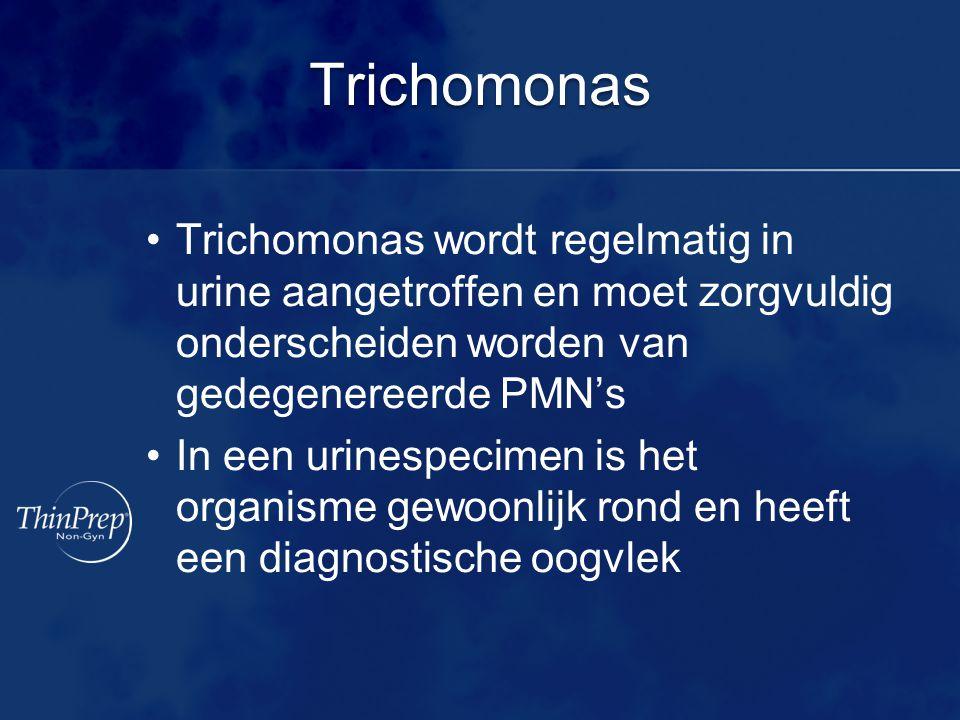 Trichomonas Trichomonas wordt regelmatig in urine aangetroffen en moet zorgvuldig onderscheiden worden van gedegenereerde PMN's In een urinespecimen is het organisme gewoonlijk rond en heeft een diagnostische oogvlek