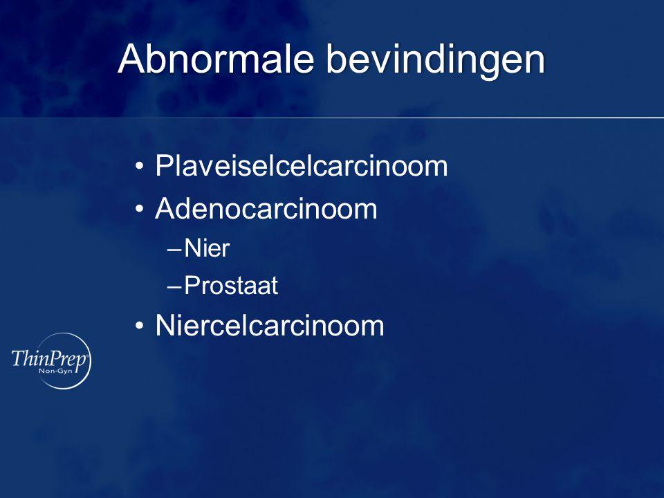 Abnormale bevindingenAbnormale bevindingen Plaveiselcelcarcinoom Adenocarcinoom –Nier –Prostaat Niercelcarcinoom