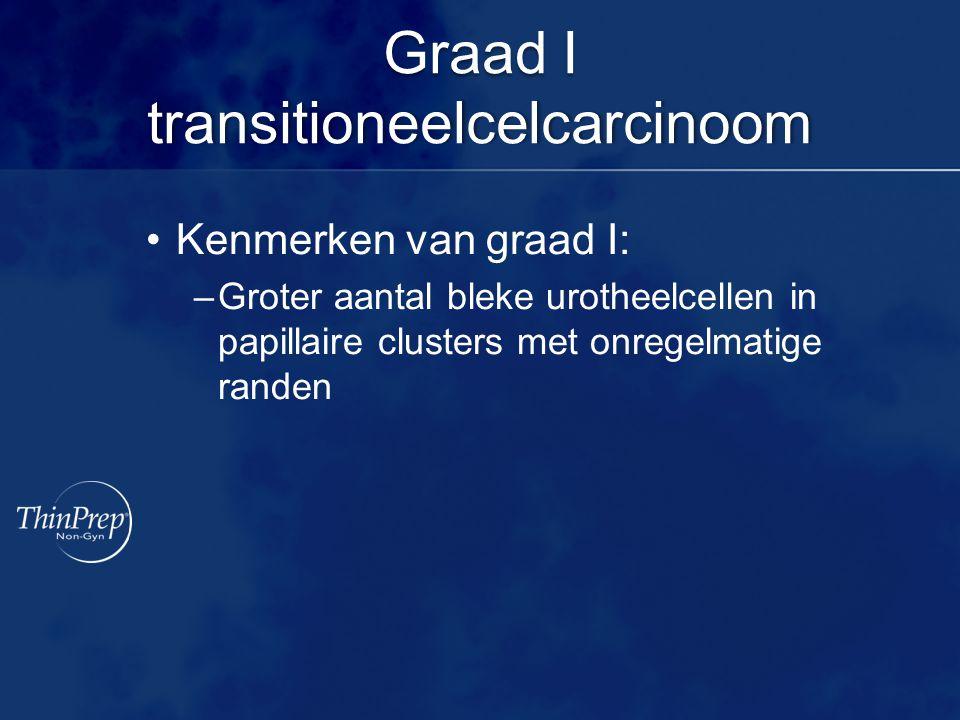Graad I transitioneelcelcarcinoom Kenmerken van graad I: –Groter aantal bleke urotheelcellen in papillaire clusters met onregelmatige randen